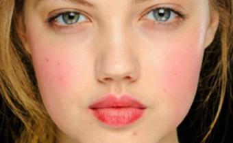 Краснеет лицо: как избавиться?