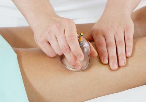 баночный массаж помогает против целлюлита