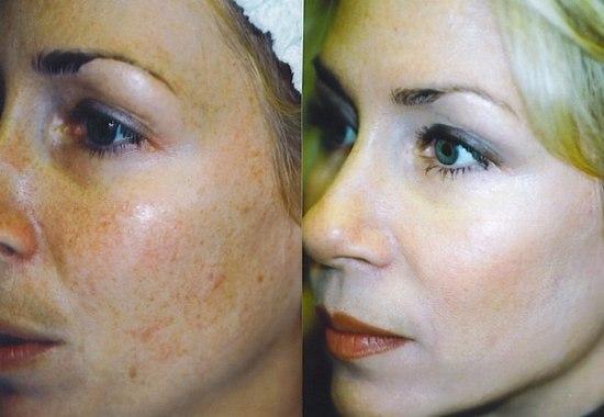 гликолевый пилинг, фото до и после