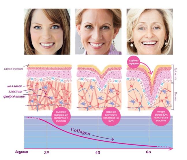 армирование лица фото до и после