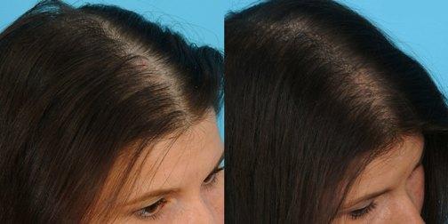 мезотерапия волос до и после