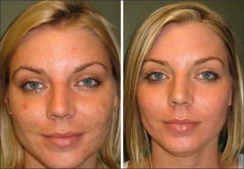 фото до и после абр пилинга