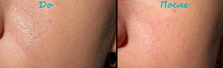 матирующие салфетки, до и после