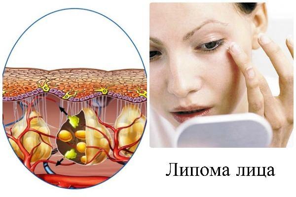 Жировик на лице лечение в домашних условиях