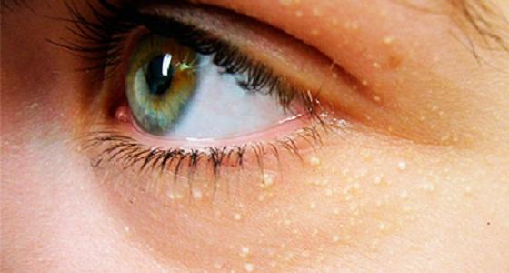 жировики на лице, фото